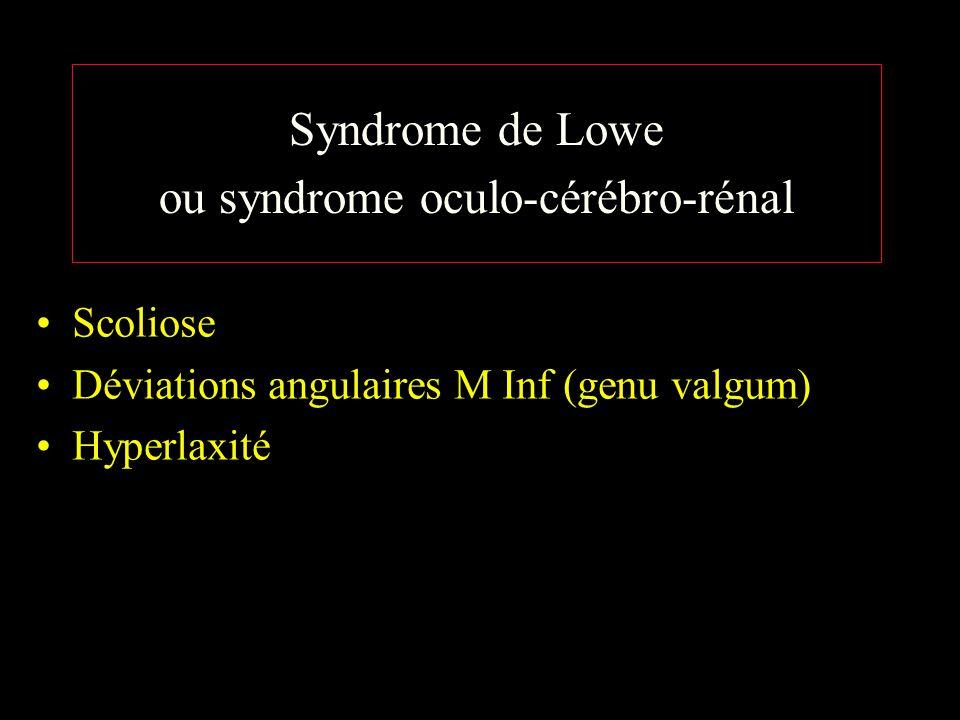 Syndrome de Lowe ou syndrome oculo-cérébro-rénal