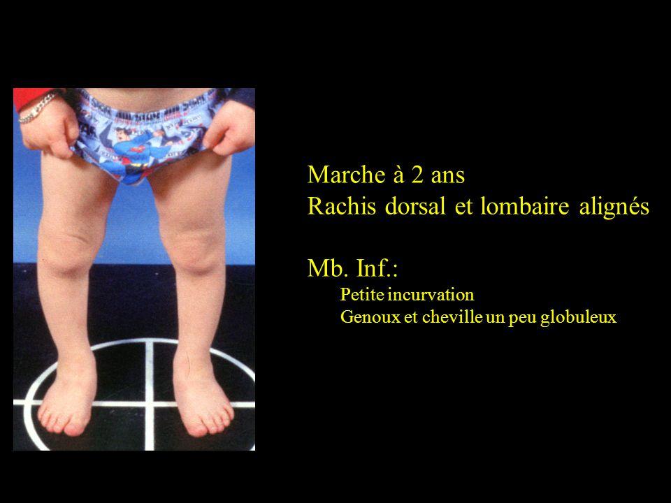 Rachis dorsal et lombaire alignés Mb. Inf.: