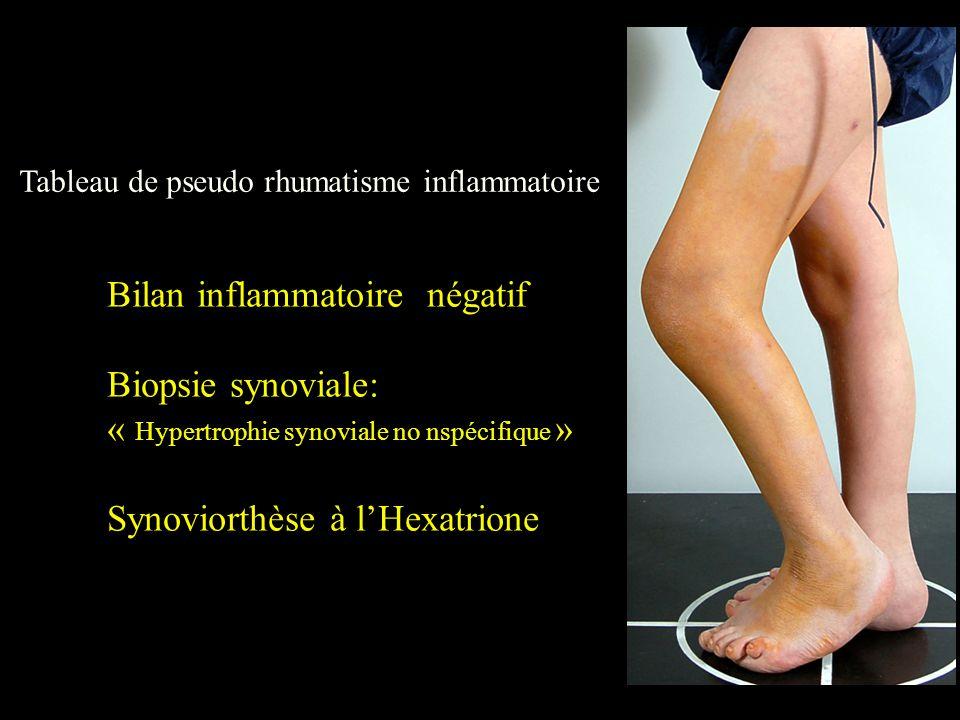 Bilan inflammatoire négatif Biopsie synoviale: