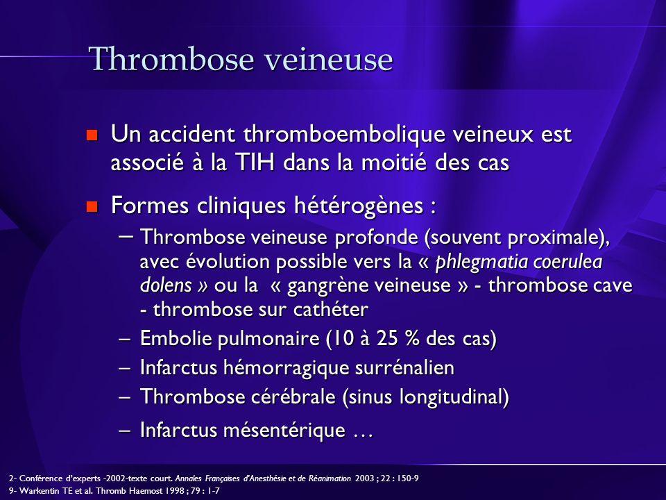 Thrombose veineuse Un accident thromboembolique veineux est associé à la TIH dans la moitié des cas.