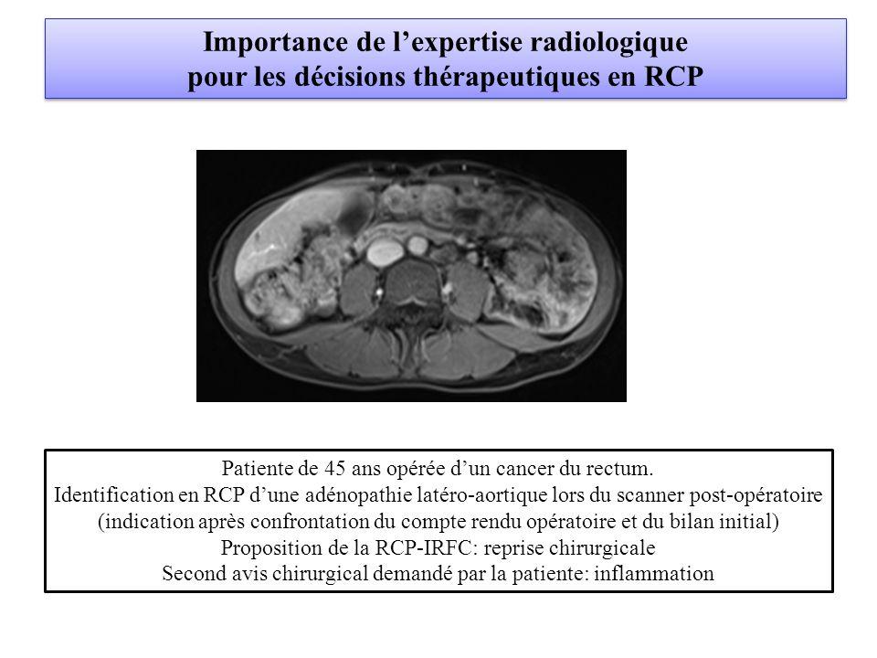 Importance de l'expertise radiologique