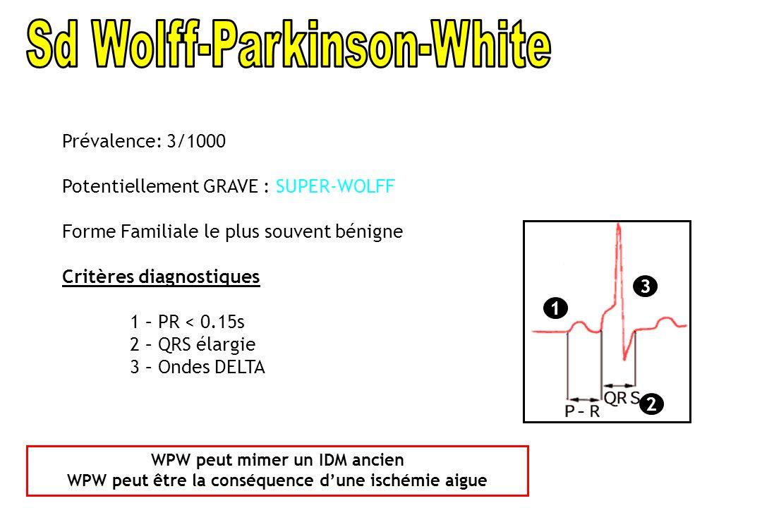 Sd Wolff-Parkinson-White