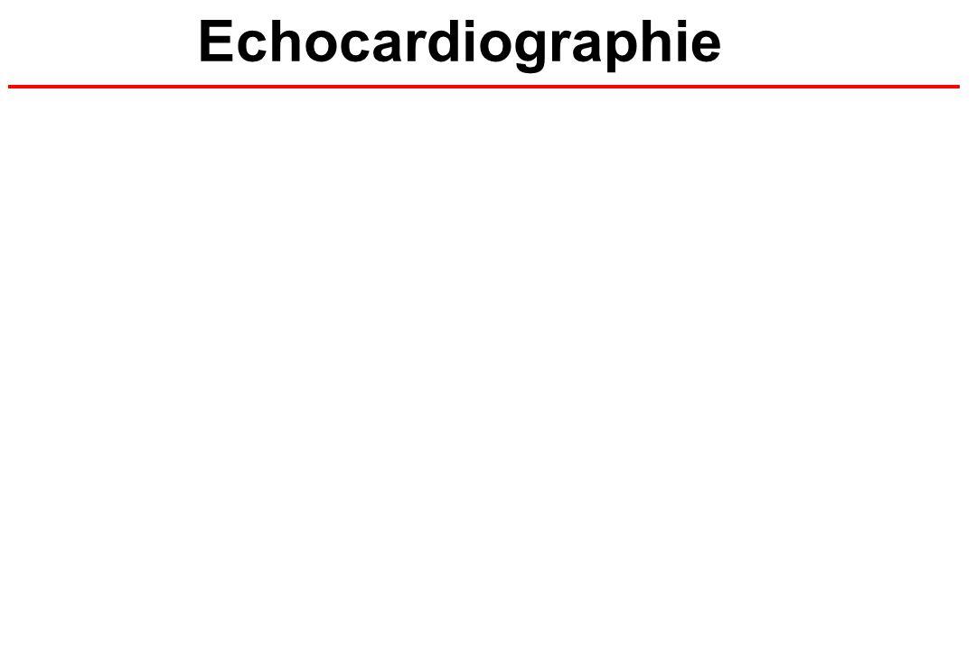 Echocardiographie