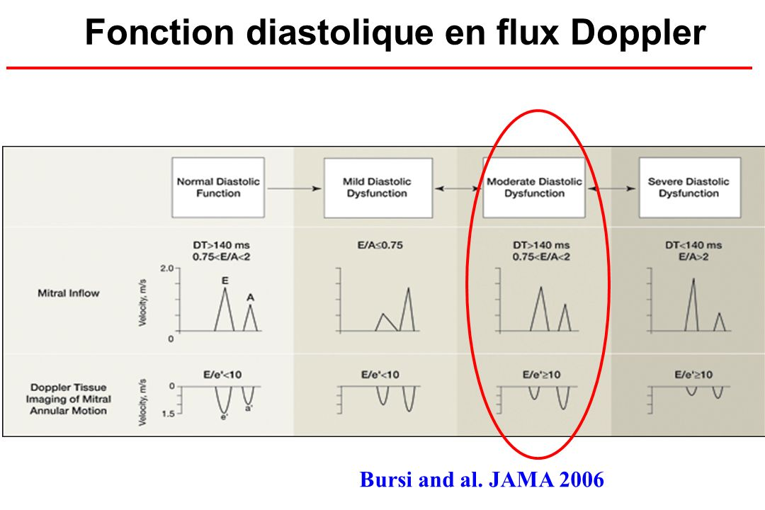 Fonction diastolique en flux Doppler