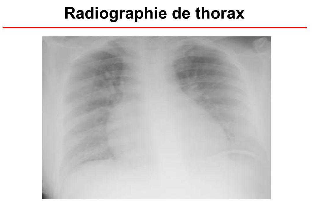 Radiographie de thorax