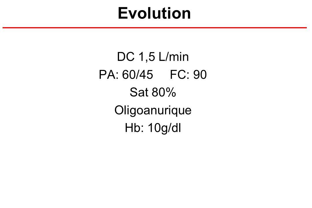 DC 1,5 L/min PA: 60/45 FC: 90 Sat 80% Oligoanurique Hb: 10g/dl
