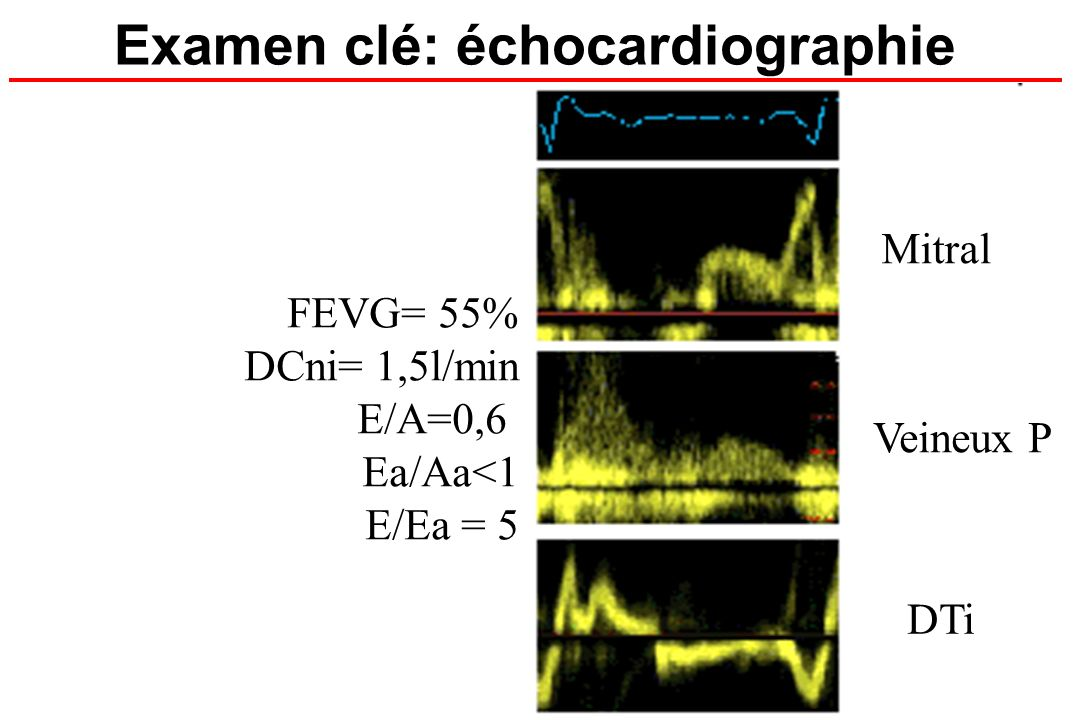 Examen clé: échocardiographie