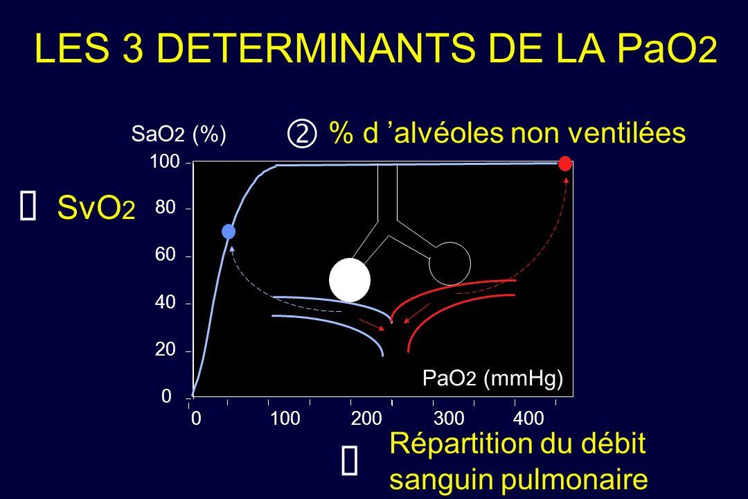 LES 3 DETERMINANTS DE LA PaO2