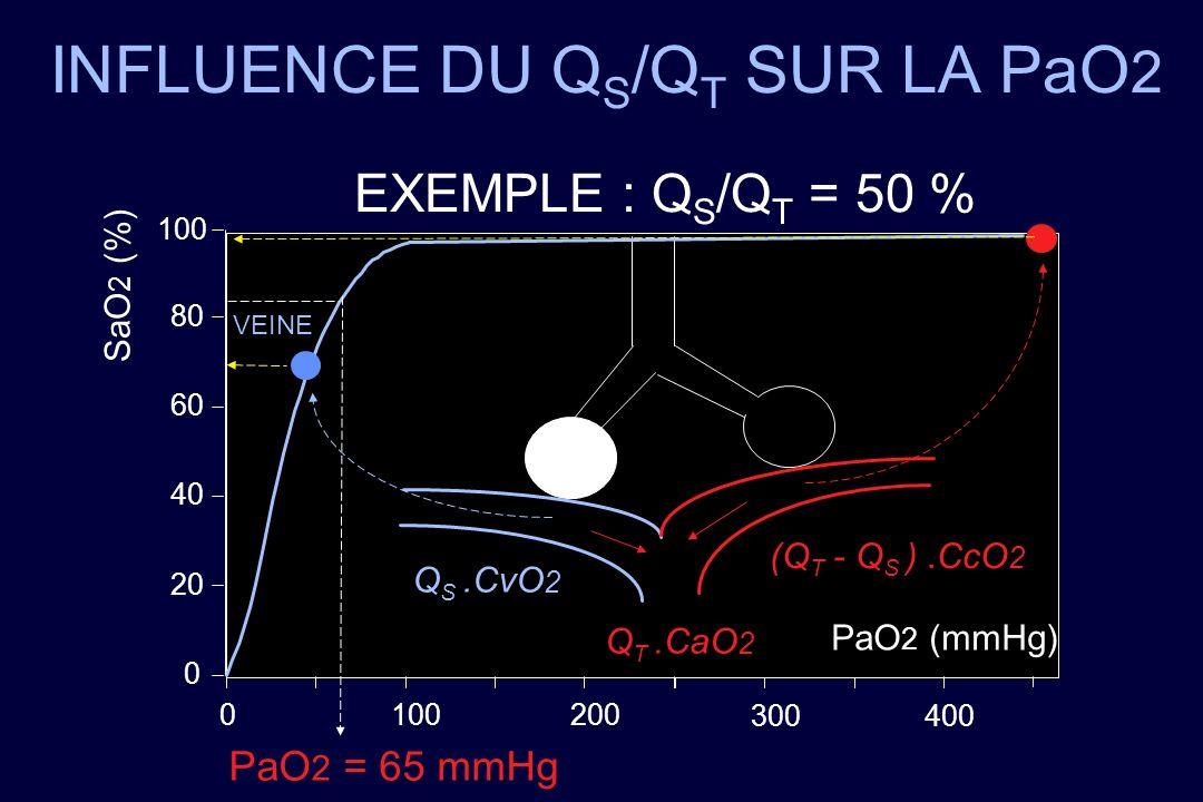 INFLUENCE DU QS/QT SUR LA PaO2
