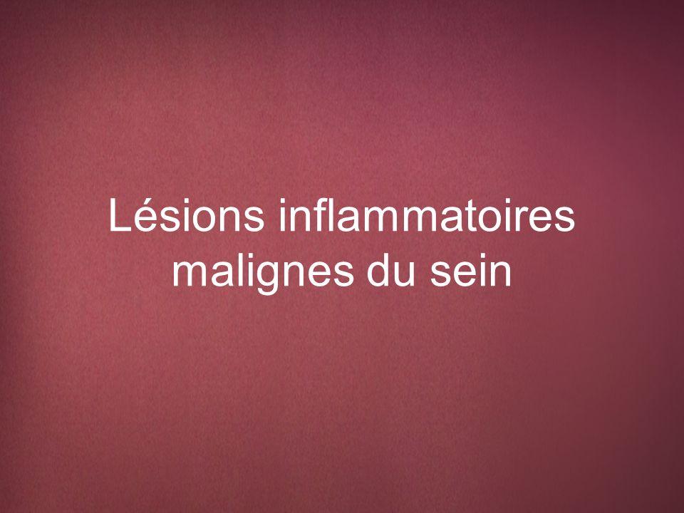 Lésions inflammatoires malignes du sein
