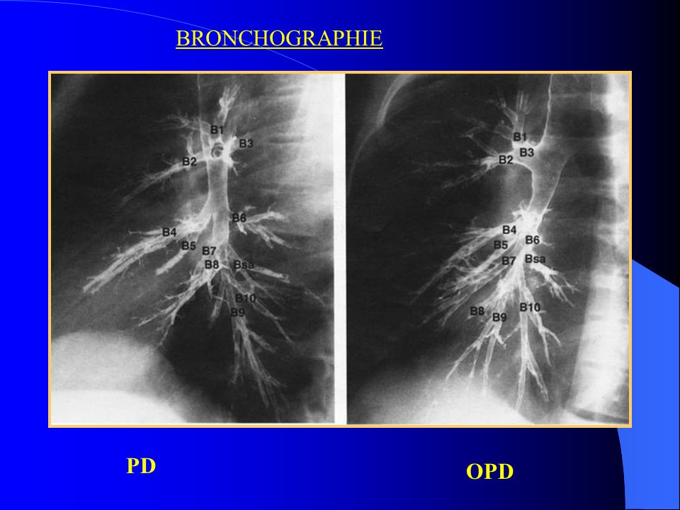 BRONCHOGRAPHIE PD OPD
