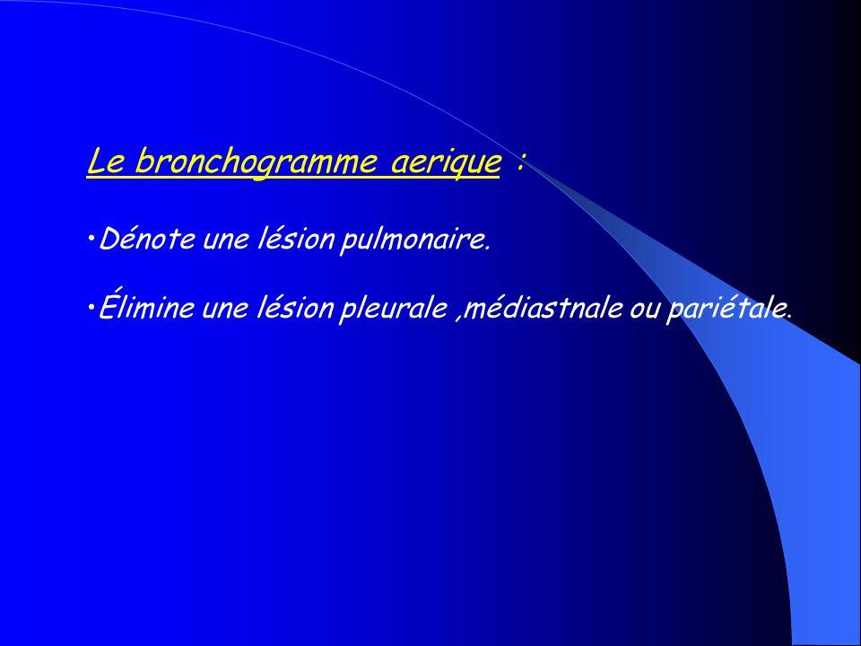 Le bronchogramme aerique :