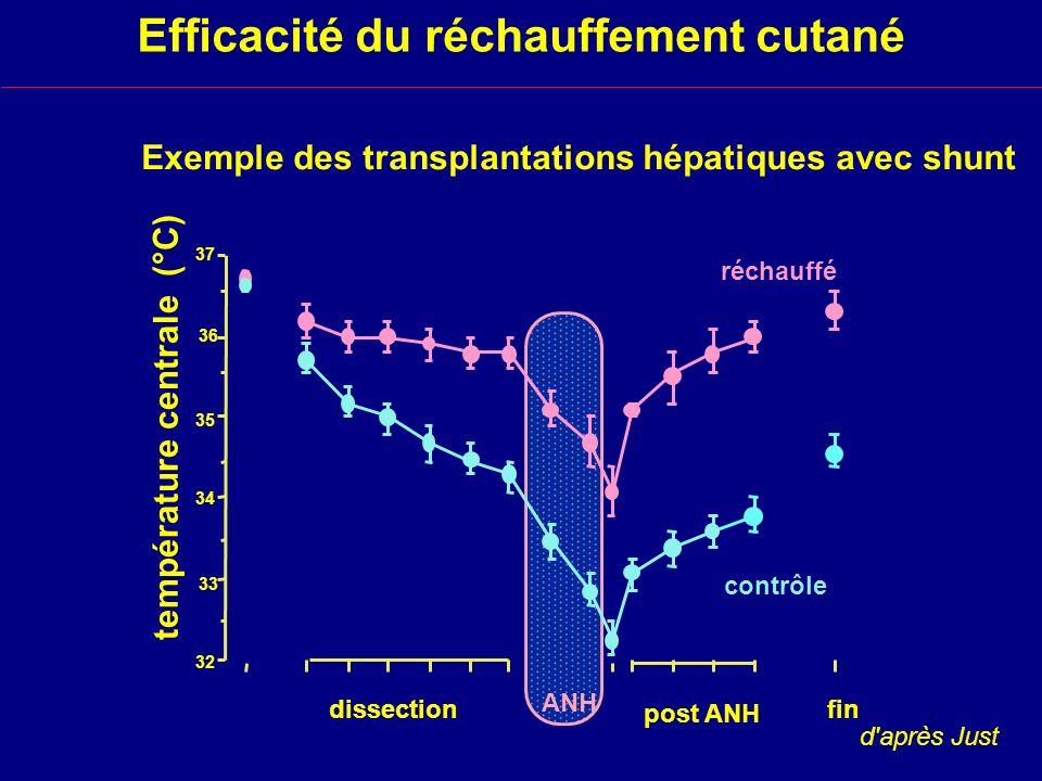 Exemple des transplantations hépatiques avec shunt
