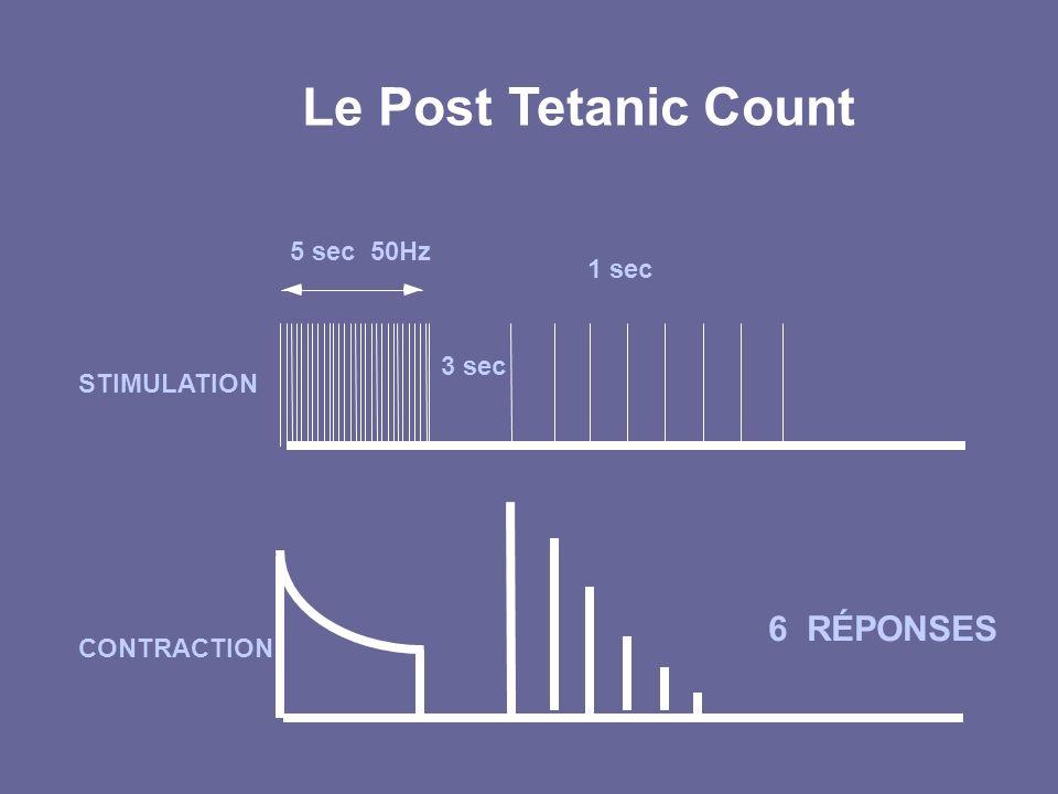 Le Post Tetanic Count 6 RÉPONSES 5 sec 50Hz 1 sec 3 sec STIMULATION
