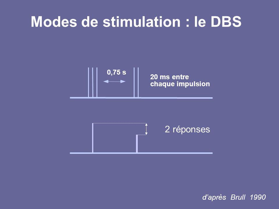 Modes de stimulation : le DBS