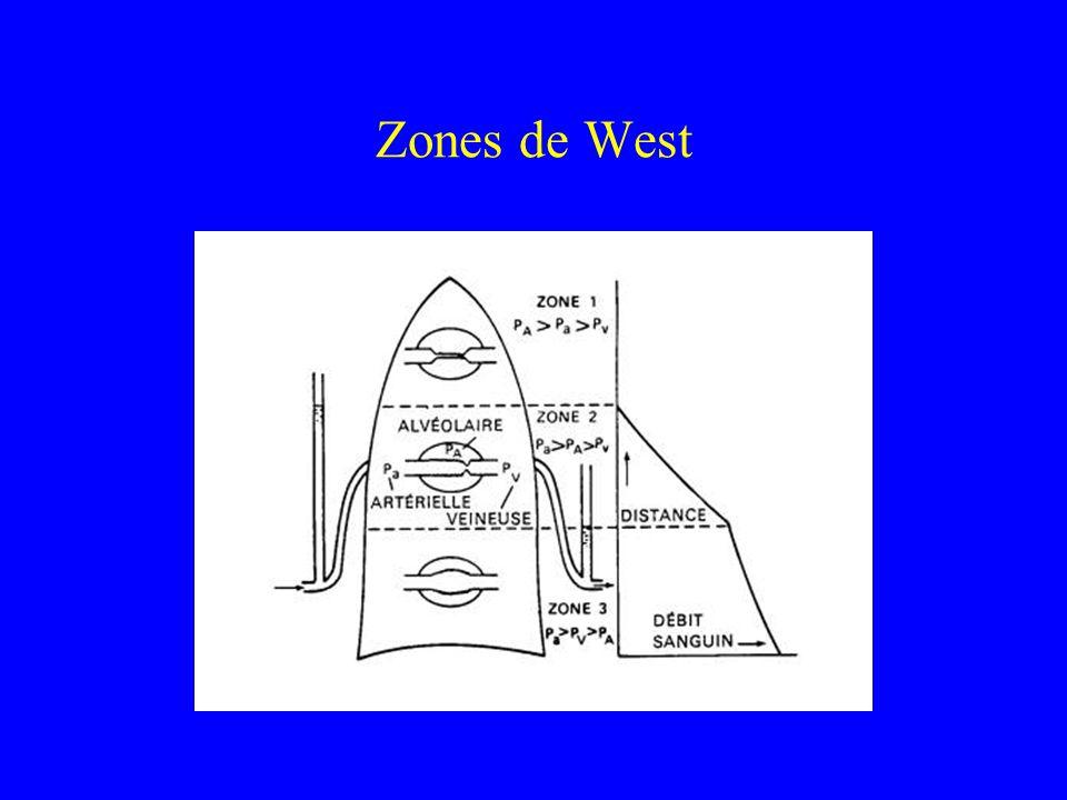 Zones de West