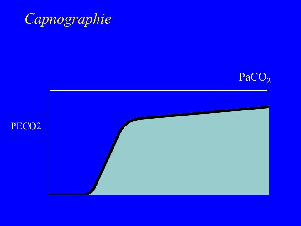 Capnographie PeCO2 30 - PaCO2 PetCO2 20 - PECO2 10 - T