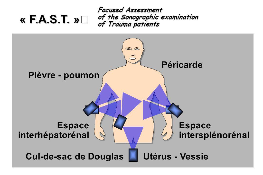 « F.A.S.T. » Péricarde Plèvre - poumon Espace interhépatorénal Espace