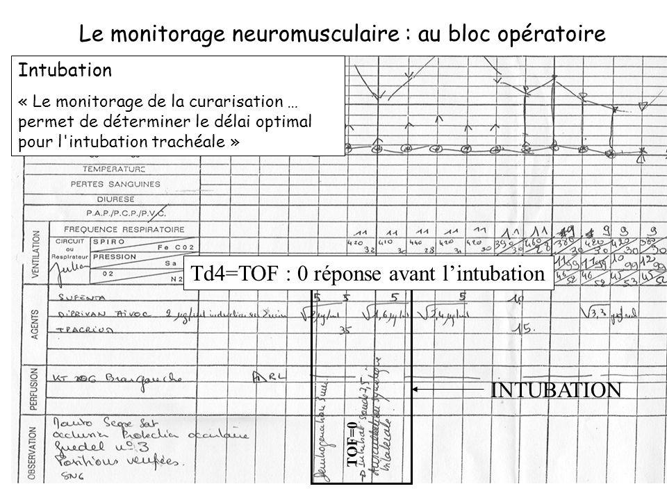 Le monitorage neuromusculaire : au bloc opératoire