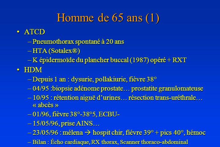 Homme de 65 ans (1) ATCD HDM Pneumothorax spontané à 20 ans