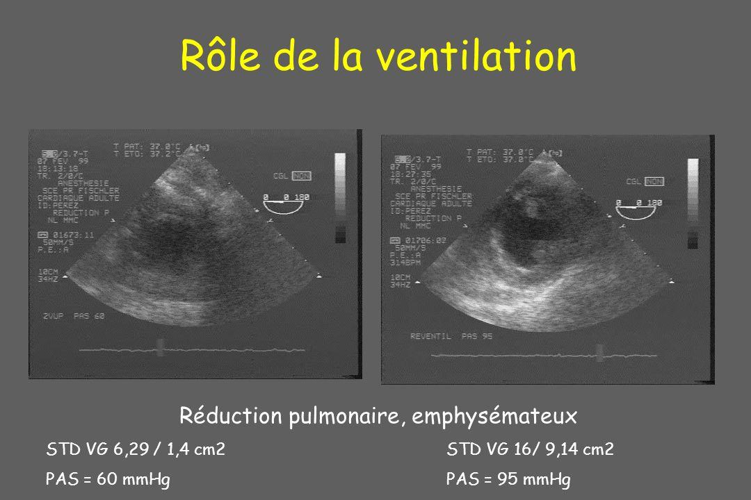 Rôle de la ventilation Réduction pulmonaire, emphysémateux