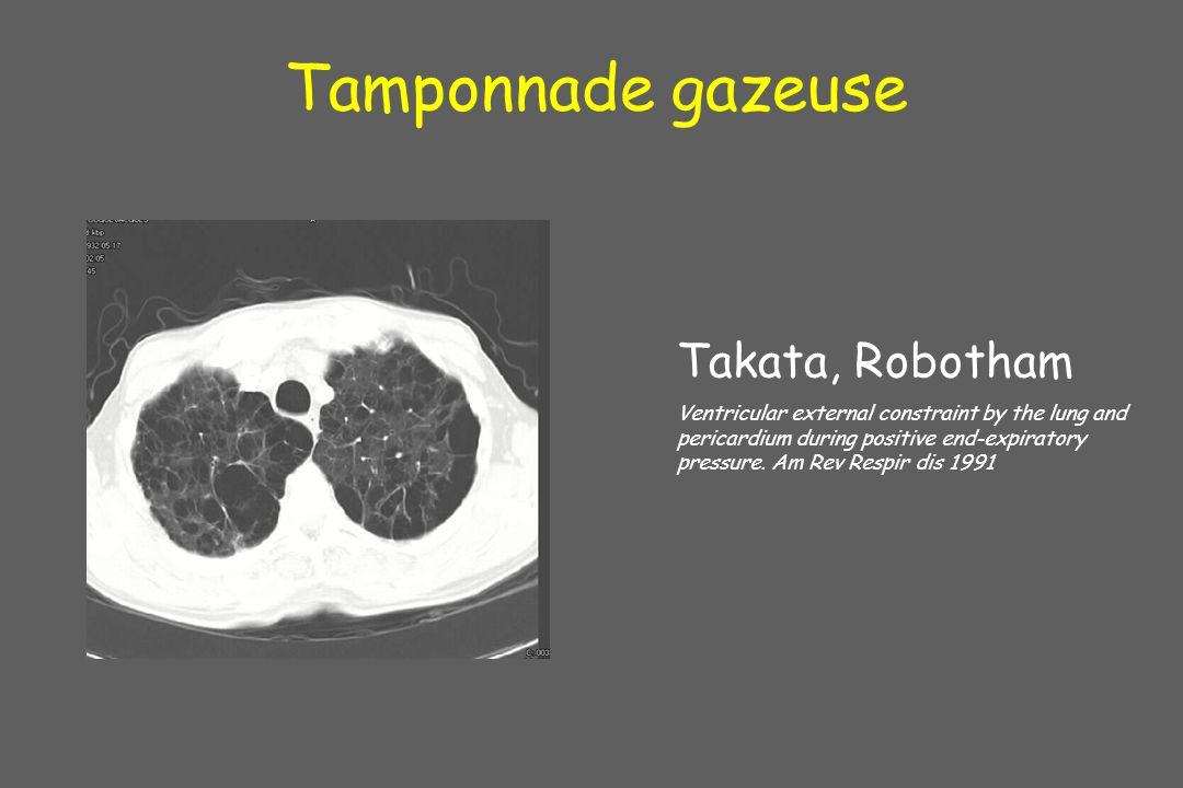 Tamponnade gazeuse Takata, Robotham