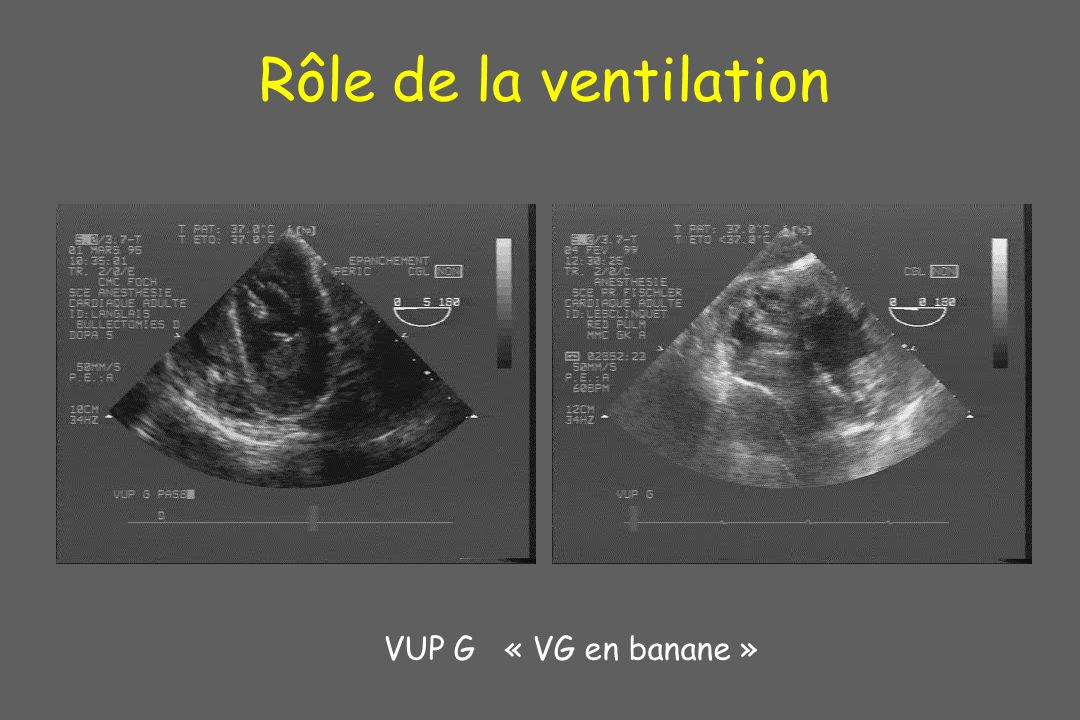 Rôle de la ventilation VUP G « VG en banane »