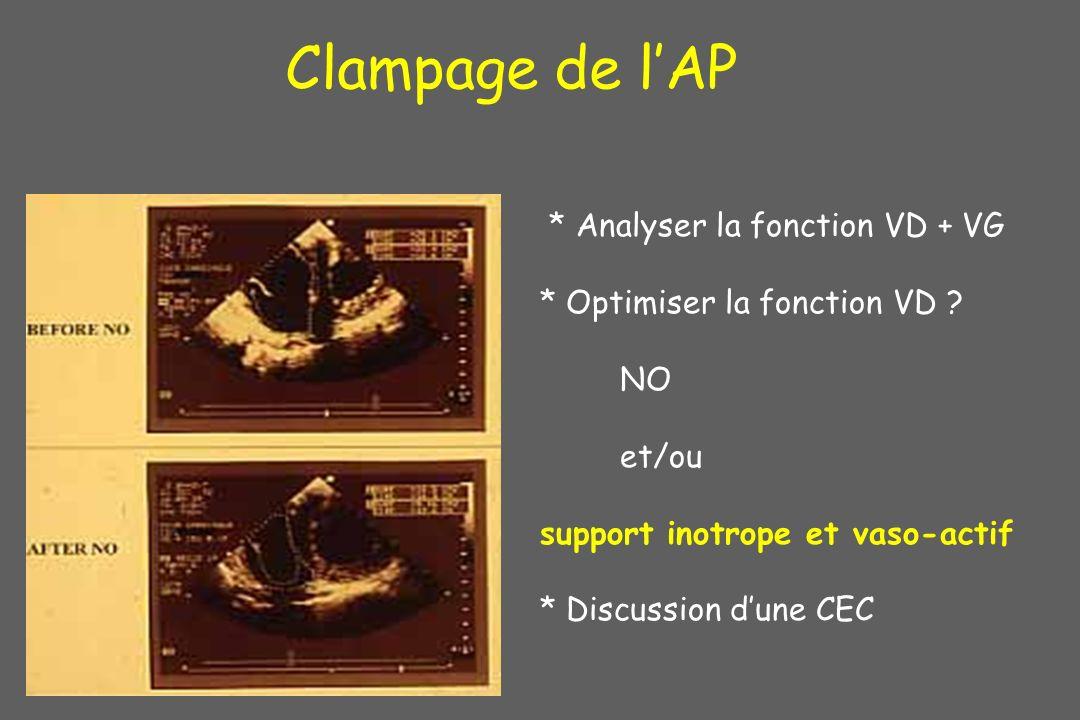 Clampage de l'AP * Analyser la fonction VD + VG