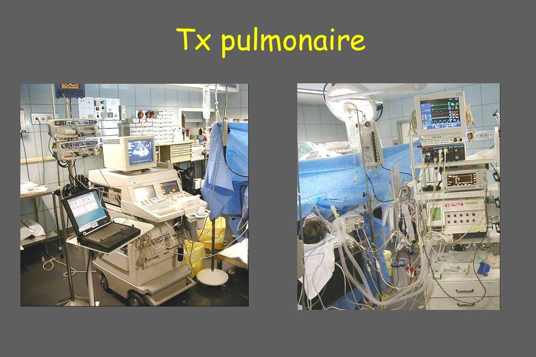 Tx pulmonaire En tx pulm eto fait partie d'un monitorage complet