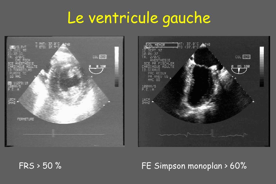 Le ventricule gauche FRS > 50 % FE Simpson monoplan > 60% 5