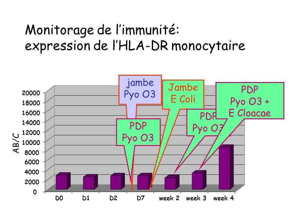 Monitorage de l'immunité: expression de l'HLA-DR monocytaire