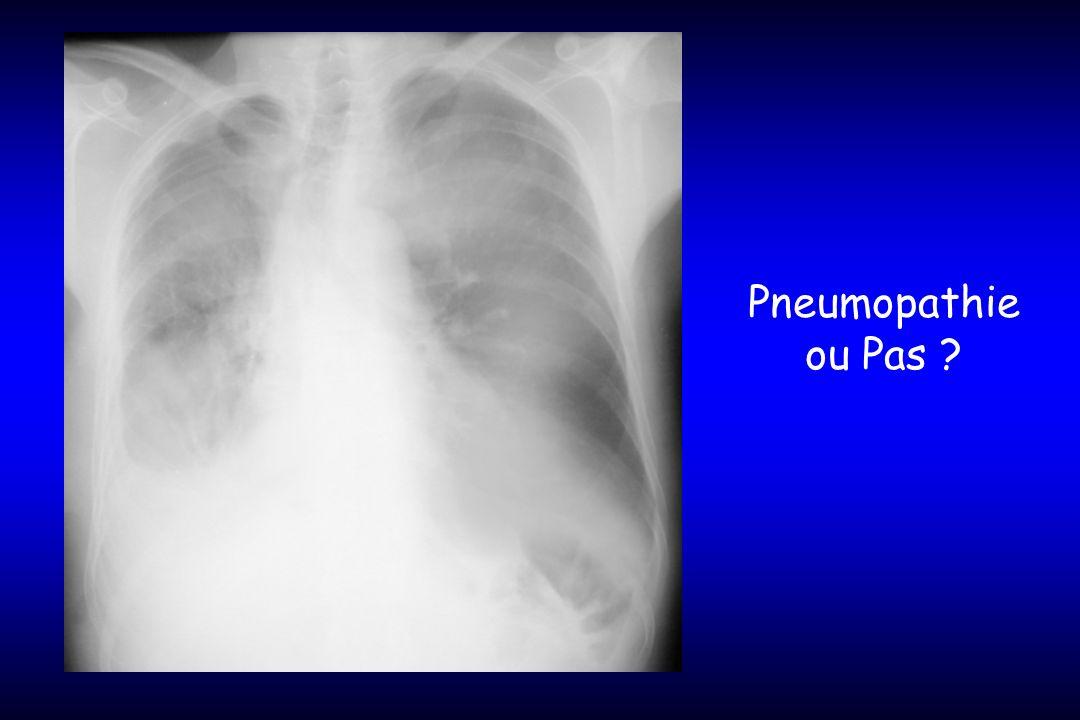 Pneumopathie ou Pas