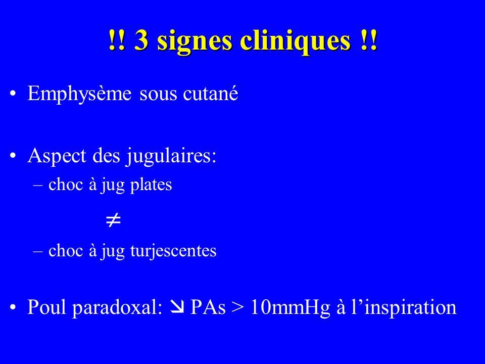 !! 3 signes cliniques !! Emphysème sous cutané Aspect des jugulaires: