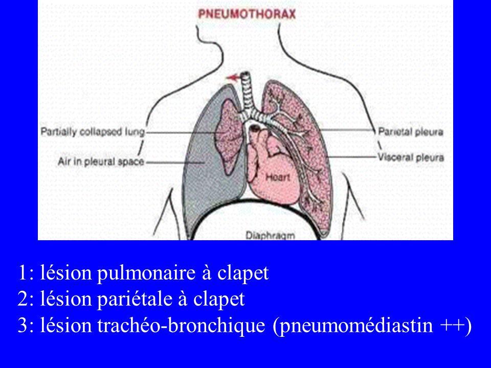 1: lésion pulmonaire à clapet