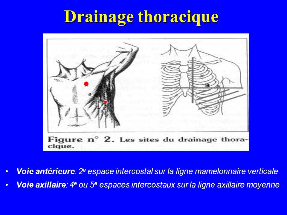Drainage thoracique Voie antérieure: 2e espace intercostal sur la ligne mamelonnaire verticale.