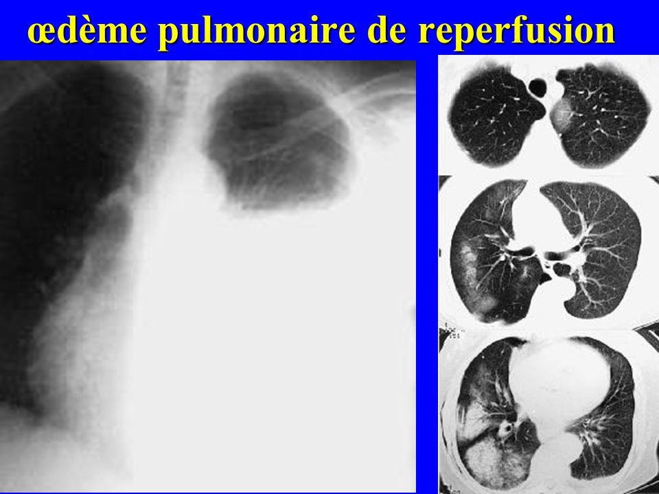 œdème pulmonaire de reperfusion