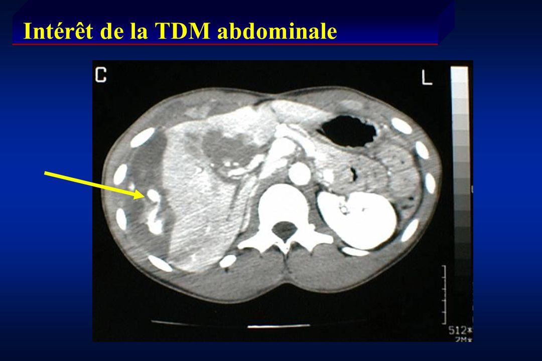 Intérêt de la TDM abdominale
