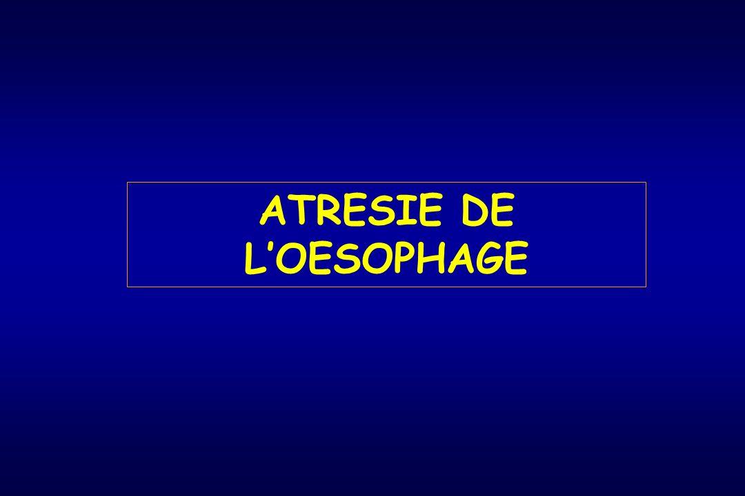 ATRESIE DE L'OESOPHAGE