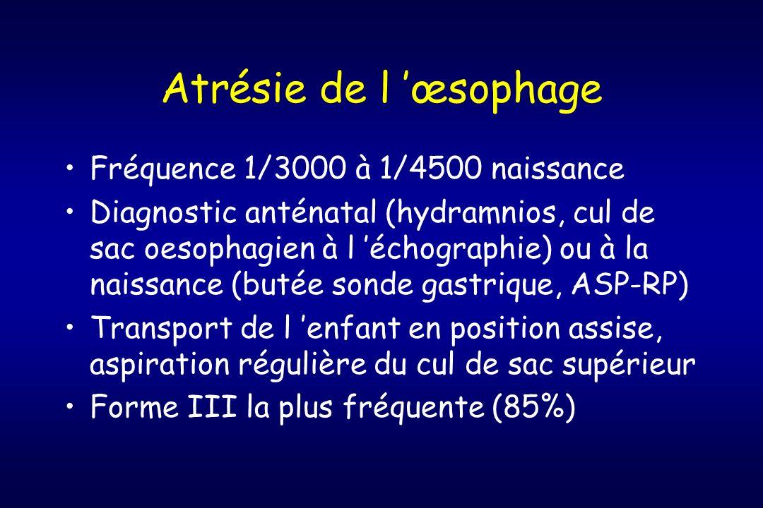 Atrésie de l 'œsophage Fréquence 1/3000 à 1/4500 naissance