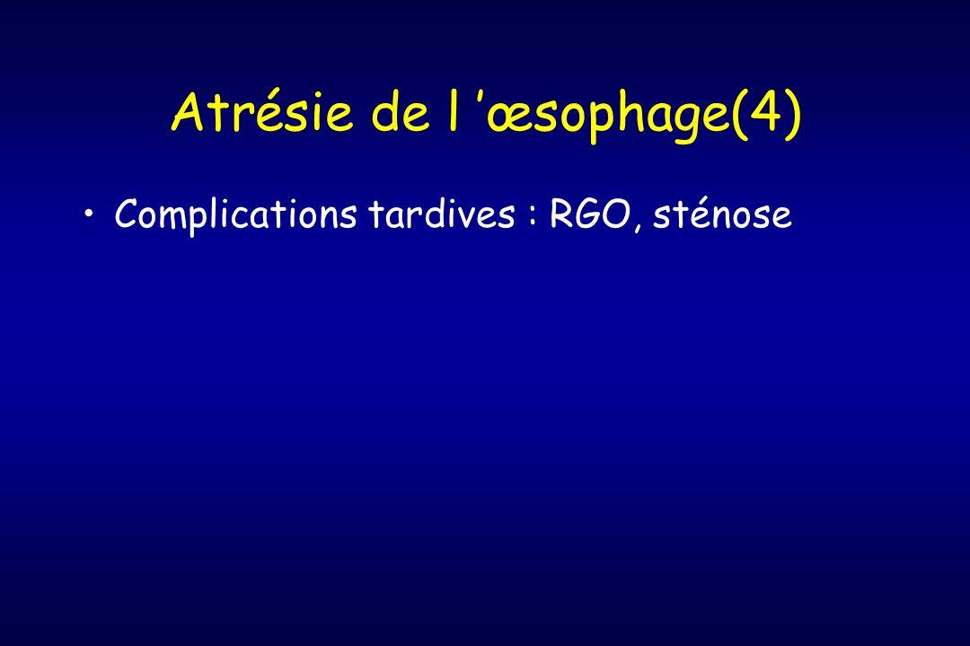 Atrésie de l 'œsophage(4)