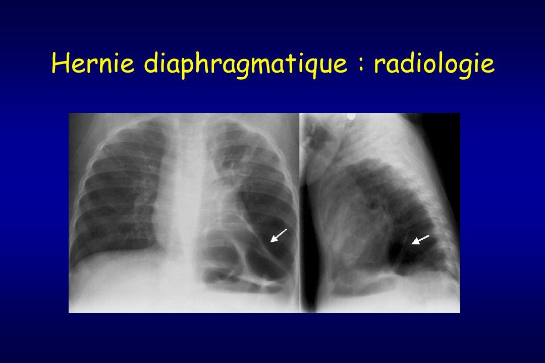 Hernie diaphragmatique : radiologie