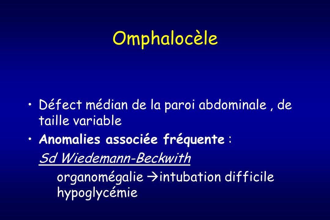 Omphalocèle Défect médian de la paroi abdominale , de taille variable