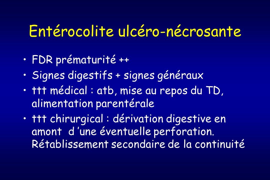 Entérocolite ulcéro-nécrosante