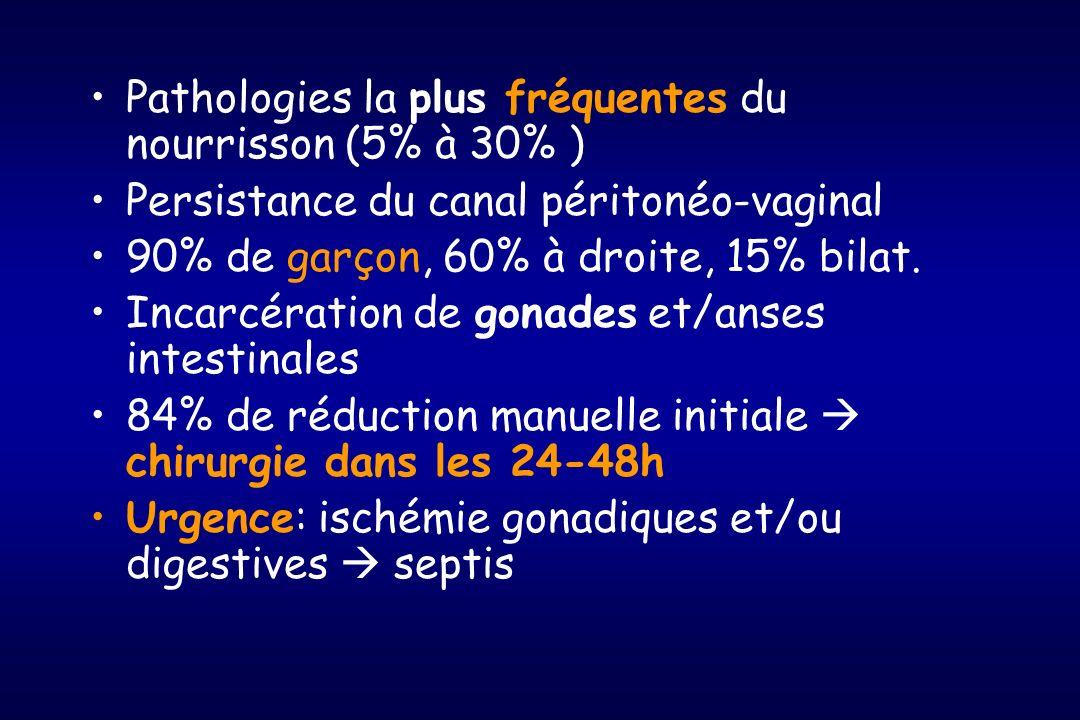 Pathologies la plus fréquentes du nourrisson (5% à 30% )