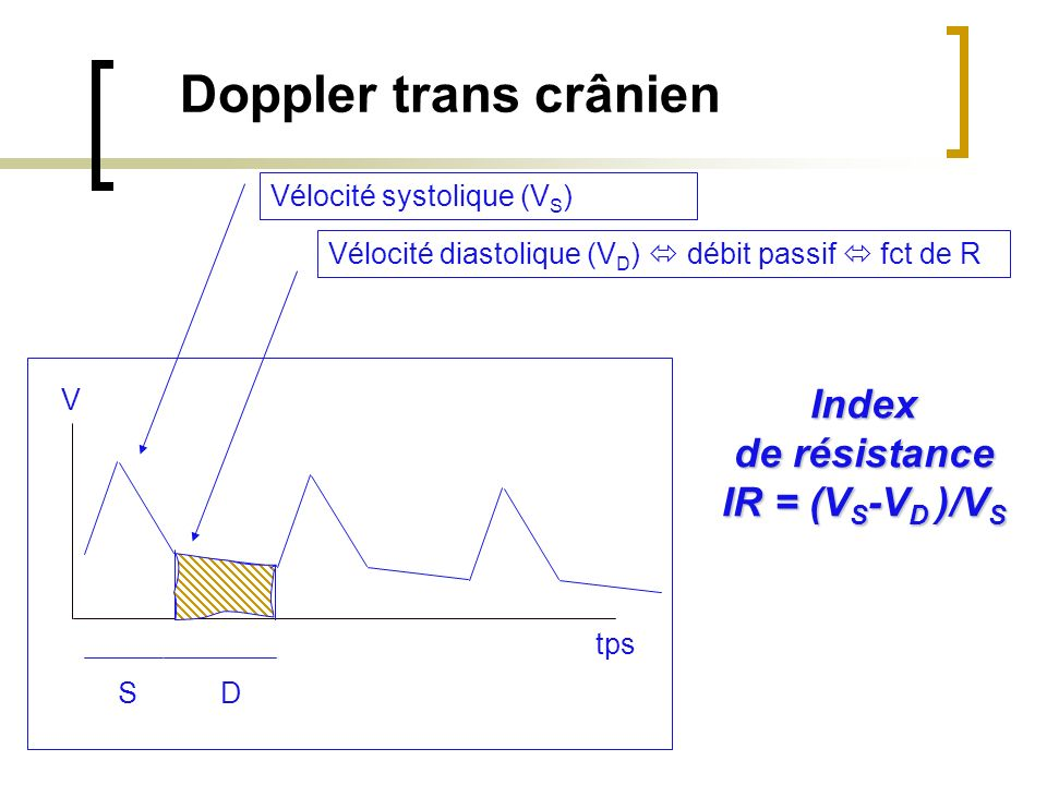 Doppler trans crânien Index de résistance IR = (VS-VD )/VS