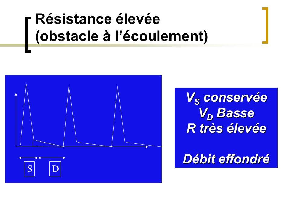 Résistance élevée (obstacle à l'écoulement)