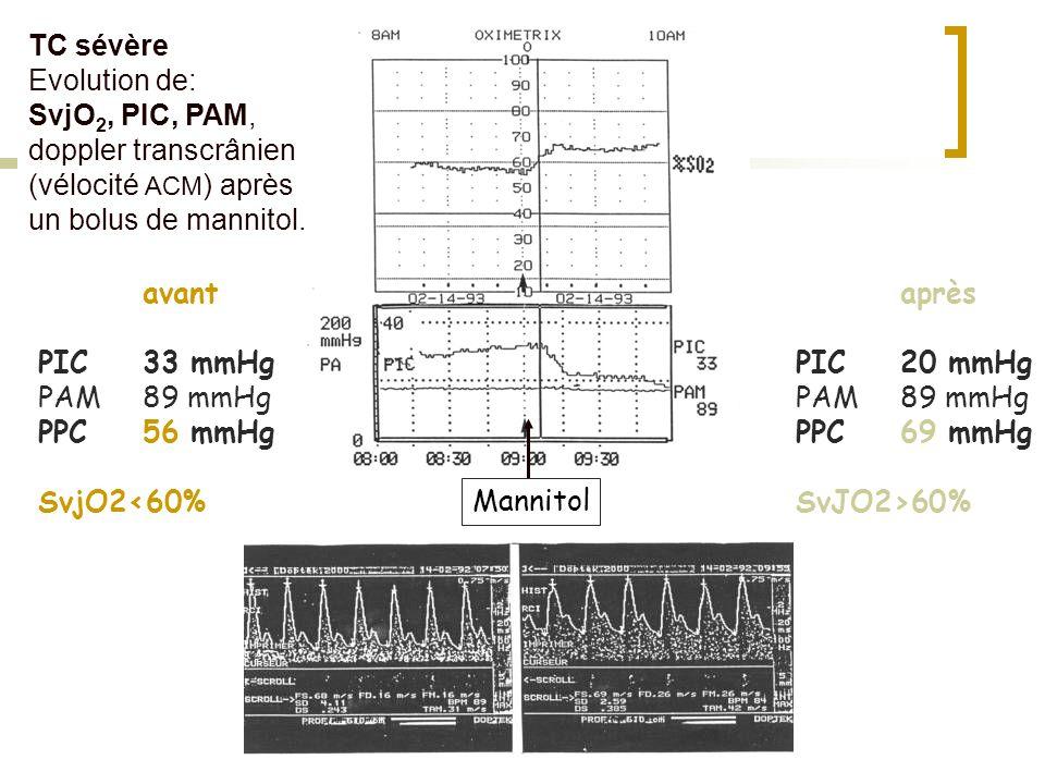 TC sévèreEvolution de: SvjO2, PIC, PAM, doppler transcrânien (vélocité ACM) après un bolus de mannitol.