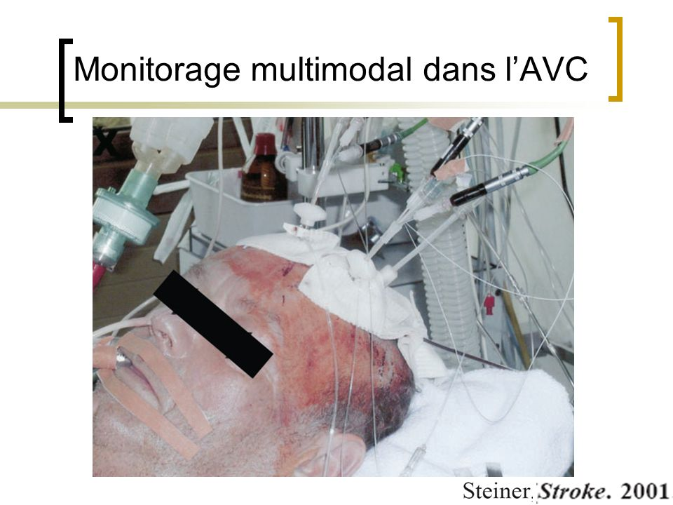 Monitorage multimodal dans l'AVC