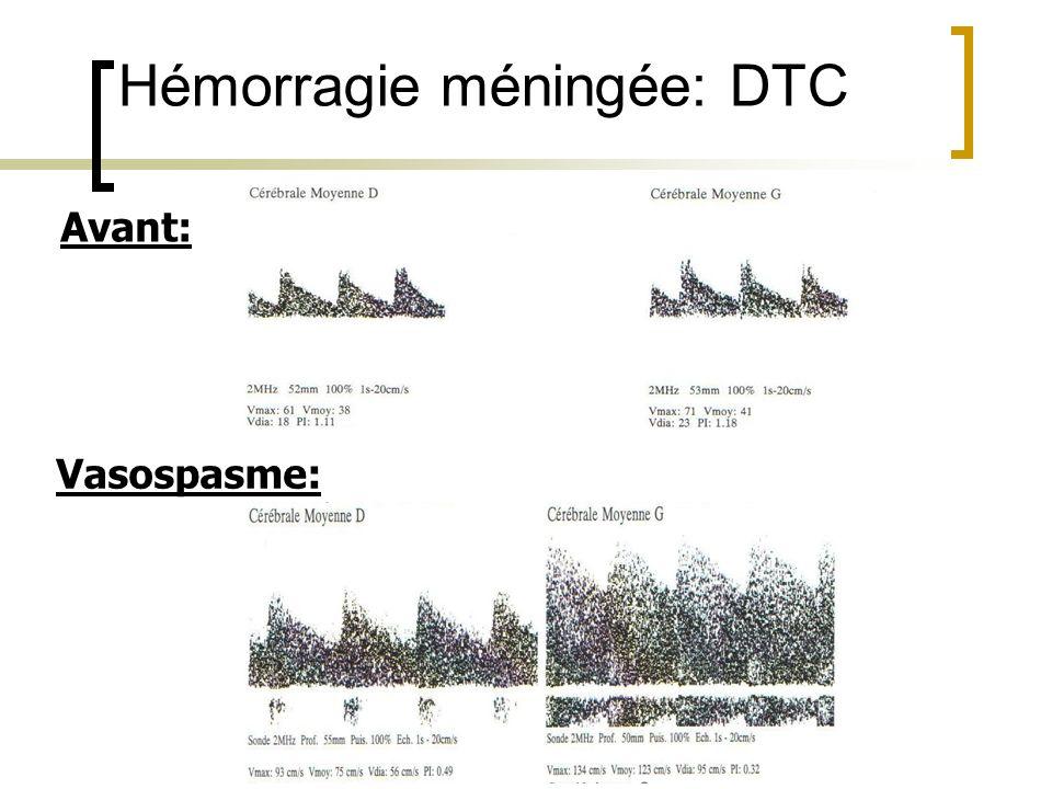 Hémorragie méningée: DTC