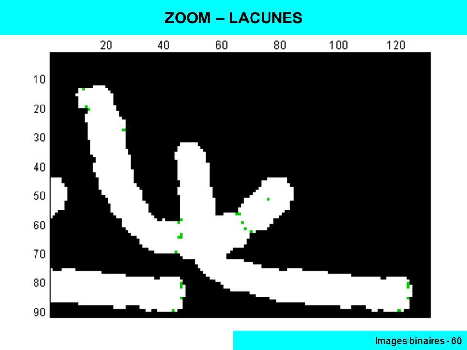 ZOOM – LACUNES